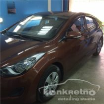 Hyundai Elantra без тонировки